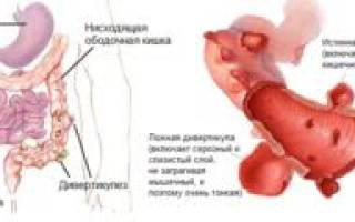 Лечение дивертикулёза кишечника народными средствами