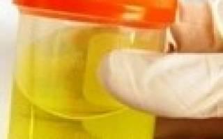 Анализ мочи при панкреатите – темный цвет, амилаза и диастаза