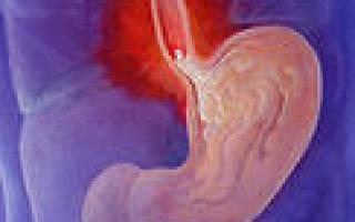 Поджелудочная железа: изжога при панкреатите и ее лечение