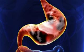 Перстневидный (клеточный) рак желудка – прогноз и лечение