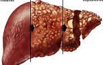 Заболевание описторхоз у взослого человека