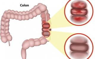 Левосторонний колит кишечника