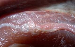 Присутствие нематод в организме человека