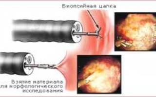 Что такое биопсия полипов?
