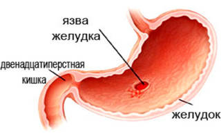 Как лечить язву желудка в домашних условиях?