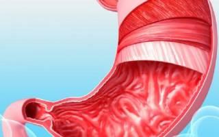 МКБ 10 и язвенная болезнь (язва) желудка