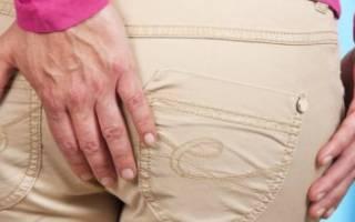 Как быстро снять воспаление геморроя в домашних условиях?
