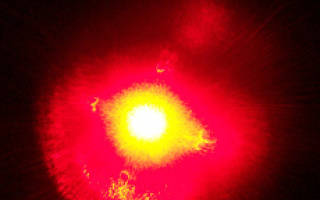 Прижигание язвы желудка лазером как один из методов лечения