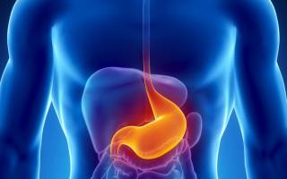 Пролиферирующий полип в желудке