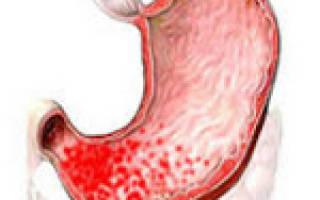 Хронический гастрит антрального отдела желудка