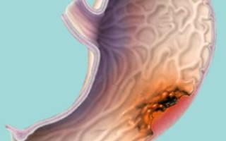 Диффузный рак желудка