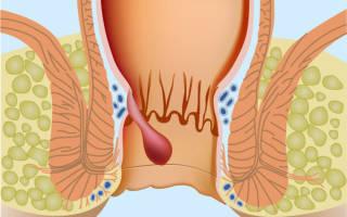 Симптомы и лечение запущенного геморроя