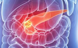 Аденокарцинома и карцинома поджелудочной железы