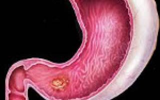 Стрессовая (на нервной почве) язва желудка