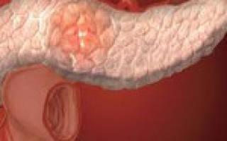 Инсулинома поджелудочной железы