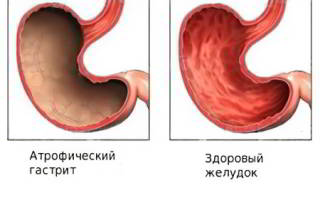 Атопический гастрит, его симптомы и лечение