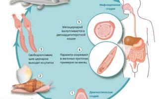 Глисты (гельминты) в глазах у человека – симптомы и лечение