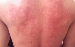 Могут ли быть запоры от аллергии?
