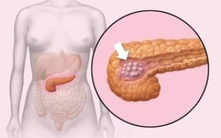 Инсулома поджелудочной железы