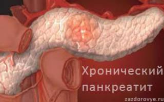 Терапия хронического панкреатита