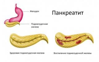 Метронидазол при панкреатите