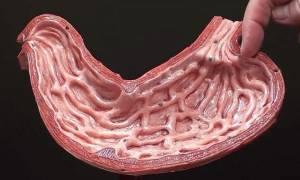 Полип антрального отдела желудка