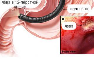Язва луковицы желудка и рубцово-язвенная деформация