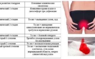 Эффективные способы лечения геморроидальных шишек