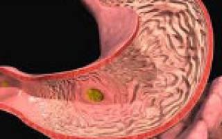 Что такое геморрагический гастродуоденит?