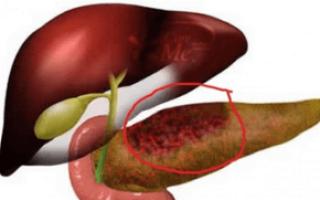 Отмирание клеток поджелудочной железы