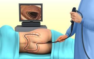 Колоноскопия при глистах