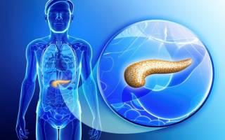 Жировой панкреонекроз (некроз поджелудочной железы)