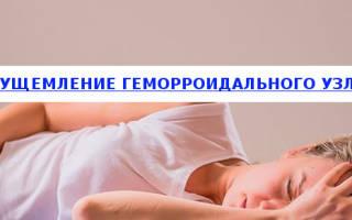 Ущемление (защемление) геморроидального узла