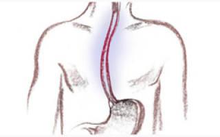Хронический рефлюкс-эзофагит