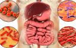Лечение таблетками дисбактериоза
