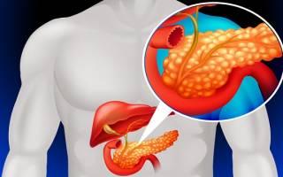 Синдромы поражения поджелудочной железы (панкреатита)