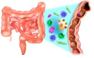 Что можно кушать при дисбактериозе?