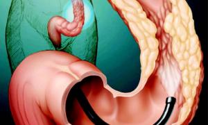 Опасен ли полип желудка