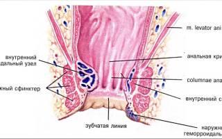 Лечение геморроя пиявками (гирудотерапия)