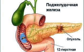 Народные средства при раке поджелудочной железы
