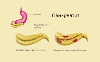Лечение диетой панкреатита, воспаления поджелудочной железы