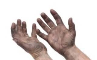 Причины заражения лямблиями, от чего возникает лямблиоз?