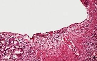 Гастрит с гиперплазией слизистой