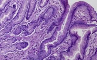 Гастрит с кишечной метаплазией