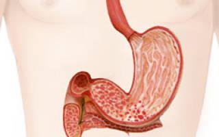 Как на гастродуоденит влияет кислотность желудка