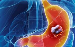 Недифференцированный рак желудка и его прогноз
