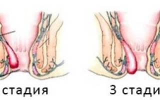 Лечение начальной (ранней, первой) стадии геморроя