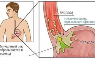 Что такое поверхностный гастрит недостаточность кардии?