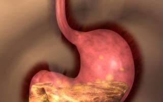 Гастродуоденит и рефлюкс-эзофагит: симптоматика и терапия